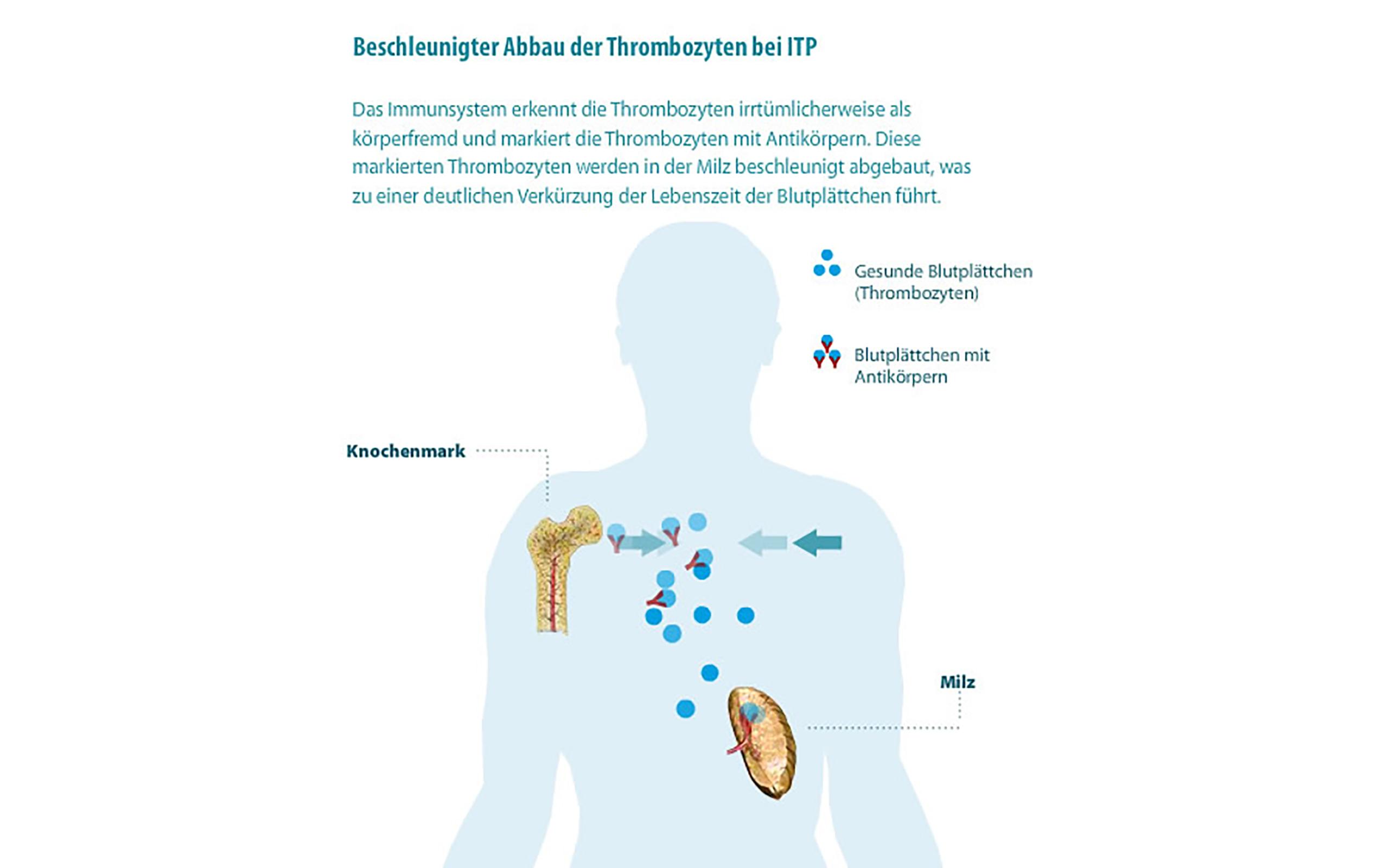 ITP - Abbau in der Milz / Grafik: itp.de